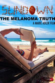 Sundown: The Melanoma Truth