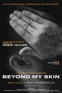 Beyond My Skin