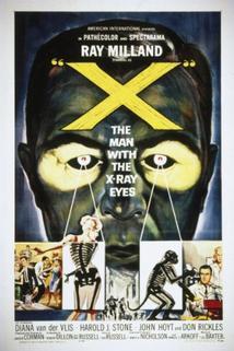 Muž s rentgenovýma očima
