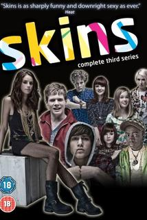 Skins  - Skins