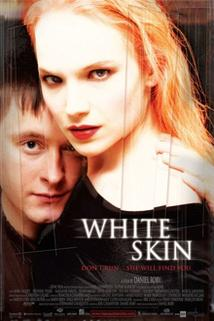 Bílá kůže