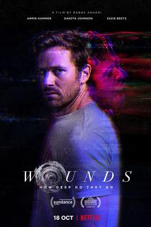 Wounds  - Wounds