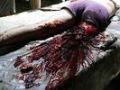Pach krve