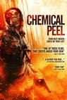 Chemical Peel (2013)