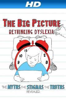 The D Word: Understanding Dyslexia
